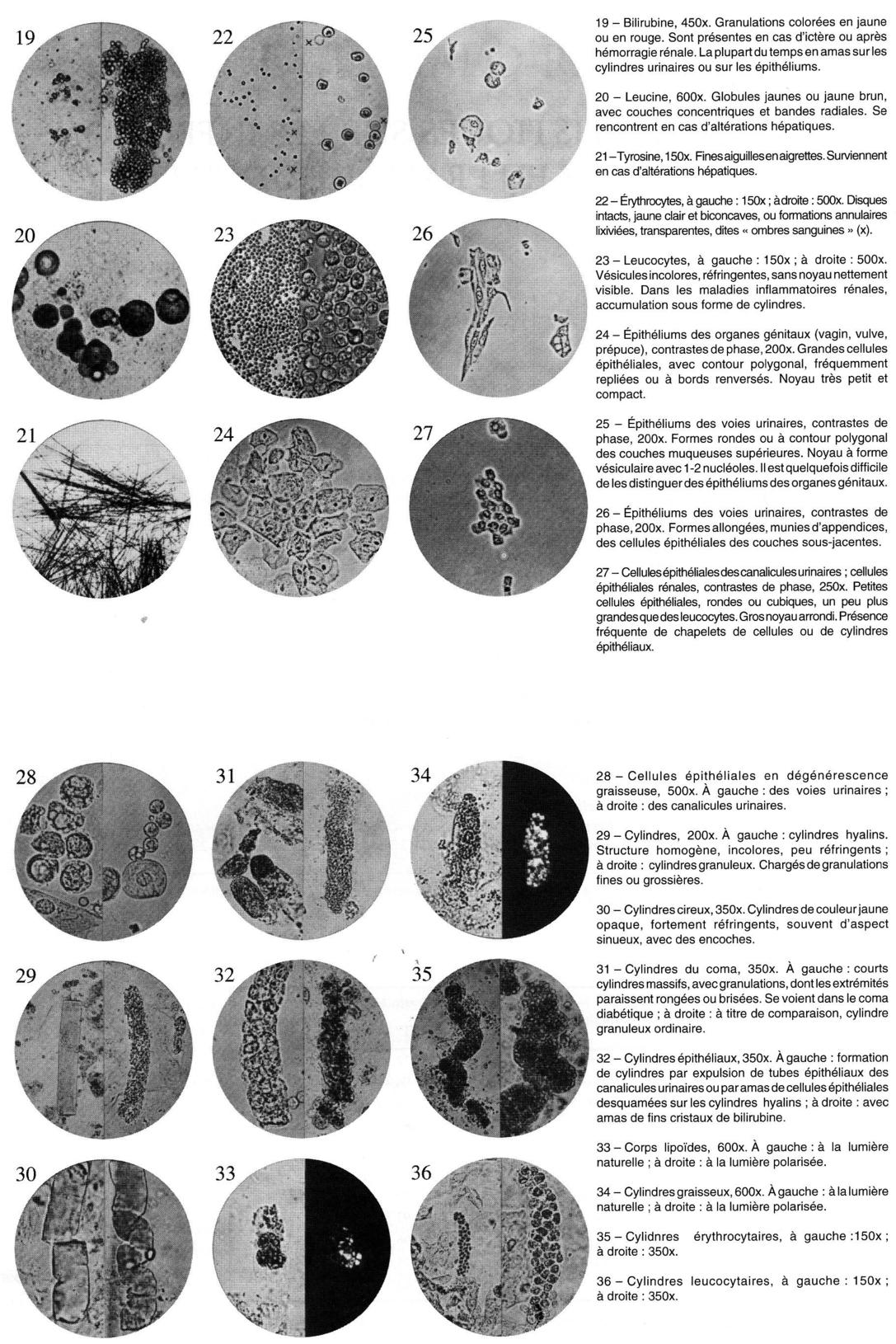 sédiments