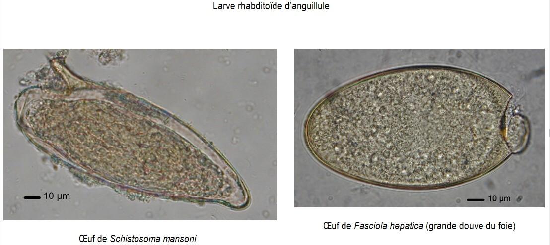 parasitaire