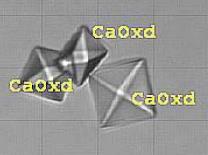 sedimax weddellite oxalate calcium