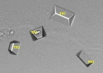 sedimax struvite cristaux phophates triples