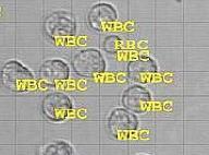 sedimax leucocytes