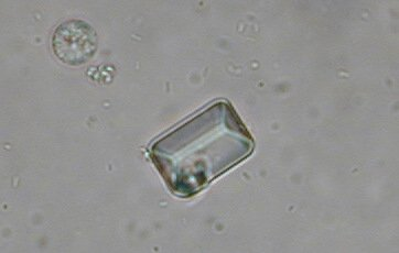phosphate ammoniaco magnésien