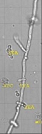 sedimax levures leucocytes