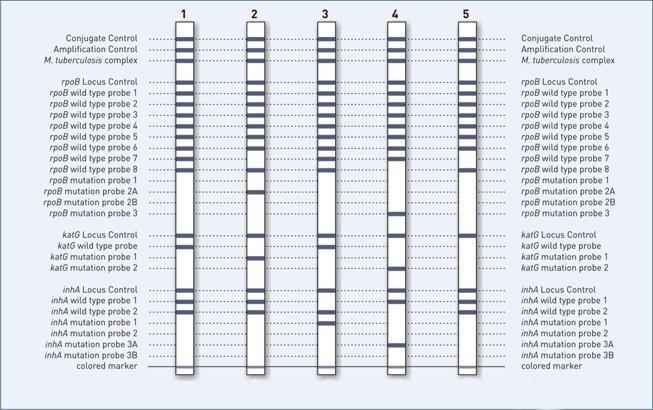 Genotype MTBDR