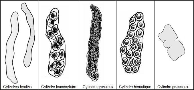 schéma des cylindres urinaires
