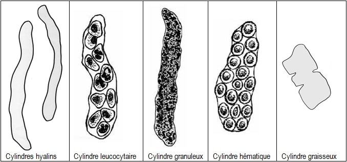 ECBU schéma des cylindres urinaires