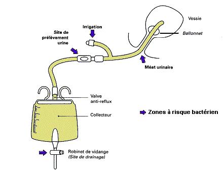 sondage urinaire sonde