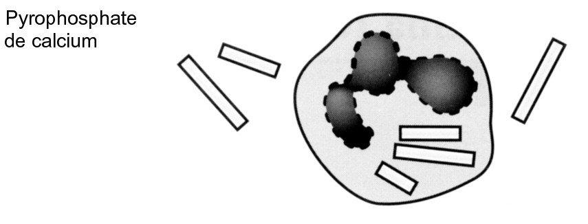 cristaux de pyrophosphate