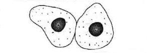 cellules urothéliales
