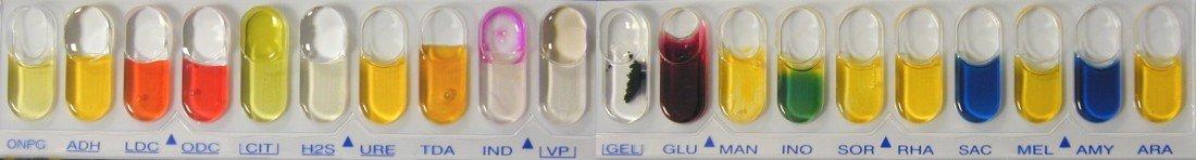 API 20E Escherichia coli
