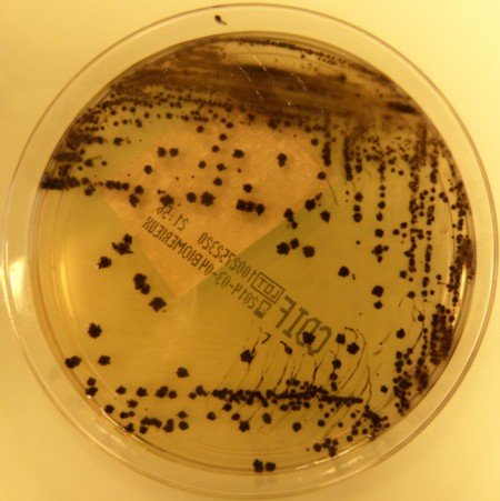 culture de clostridium difficile