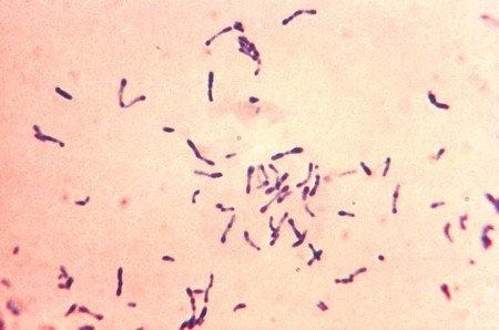 Gram corynebacterium diphtheriae