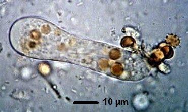 forme végétative entamoeba histolytica