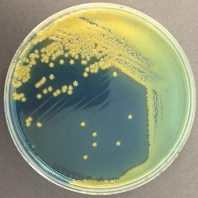 Drigalski Enterobacter aerogenes