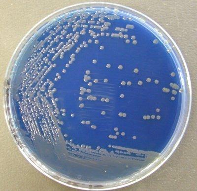 Drigalski Acinetobacter