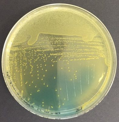 Enterococcus faecalis CLED