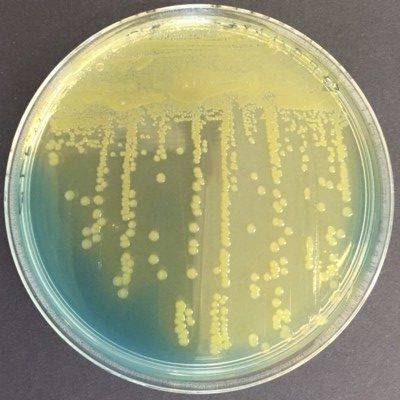Klebsiella oxytoca CLED