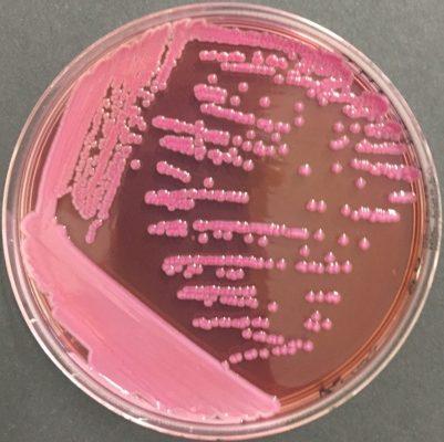 Mac Conkey Enterobacter aerogenes