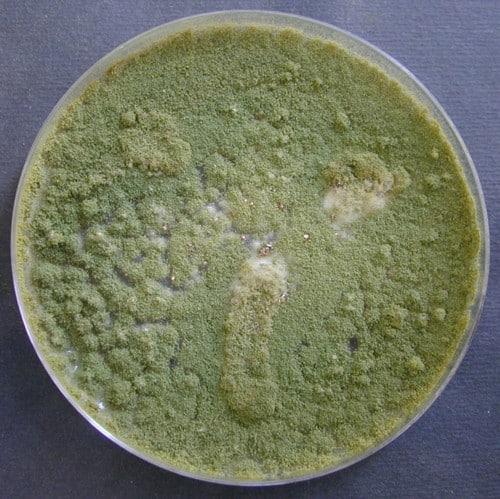 Aspergillus flavus Sabouraud